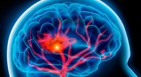 Лечение сосудов мозга — народные рецепты для головы