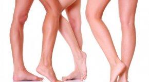 Варикозное расширение вен ног – симптомы, причины и лечение