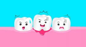 11 продуктов, которые вредят зубам и вызывают кариес