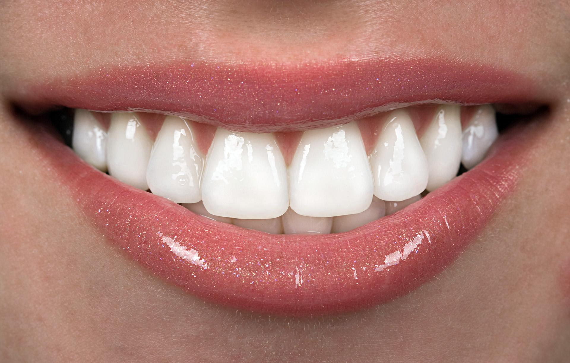 установка виниров на зубы видео