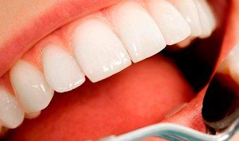 Что такое виниры – плюсы и минусы винирования зубов