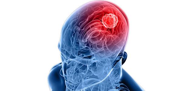 Клещевой энцефалит диагностика