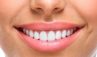 Голливудская улыбка – домашний уход за зубами