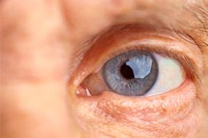 Лечение катаракты в домашних условиях