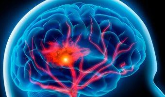 Лечение сосудов мозга – народные рецепты для головы