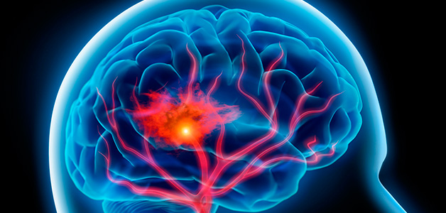 Лечение сосудов мозга - народные рецепты для головы