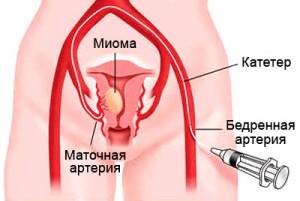 удаление миомы