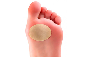 Мозоль на ноге народные средства