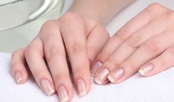 Пятна на ногтях – причины и возможные заболевания