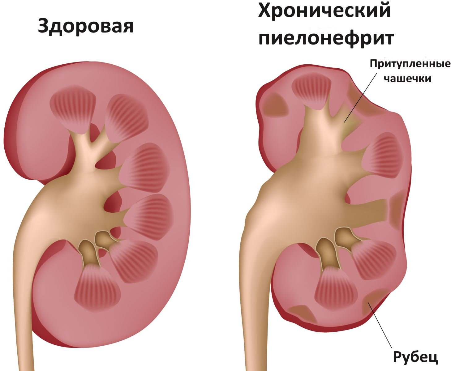 Пиелонефрит - причины, лечение лекарственными и народными средствами