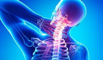 Шейный остеохондроз – как определить и вылечить