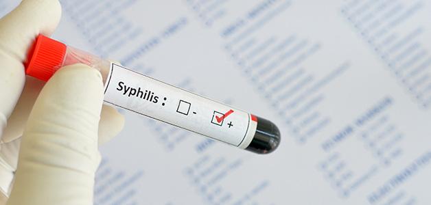 Диагностика сифилиса при беременности
