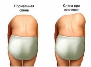 симптомы сколиоза 2