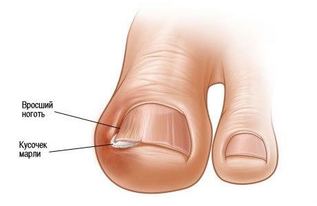 Как правильно стричь ногти: http://polzavred.ru/kak-pravilno-strich-nogti.html