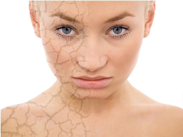 Что делать если сухая кожа лица