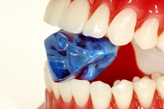 Зубной камень налет