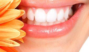 Зубные камни – почему они появляются и как их удалить?
