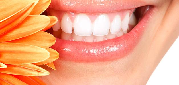 Зубные камни - почему они появляются и как их удалить?